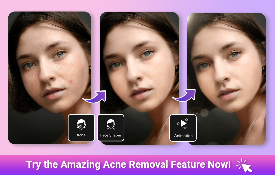 YouCam Perfect Acne Removal